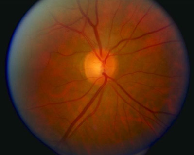 Normal optic disc and blood vessels as seen in a standard retina image.